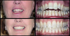dentistry before and after discover dental