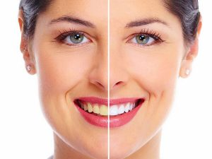 teeth whitening discover dental feature