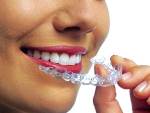 Invisalign Discover Dental