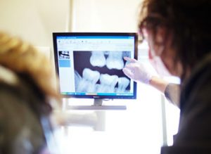 digital x-ray discover dental
