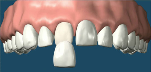 porcelain veneer discover dental