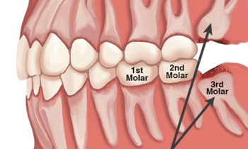 Wisdom Teeth Extractions Discover Dental