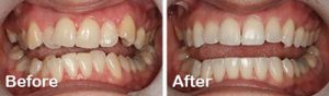 before after-six month smile demon clear braces discover dental