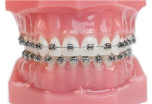 braces discover dental