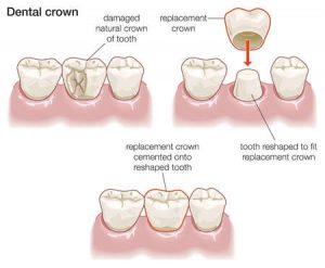 Crowns Discover Dental