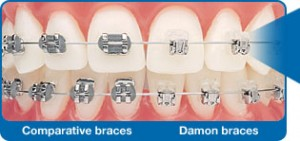 damon-braces-2-300x141