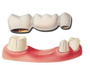 dental bridges discover dental
