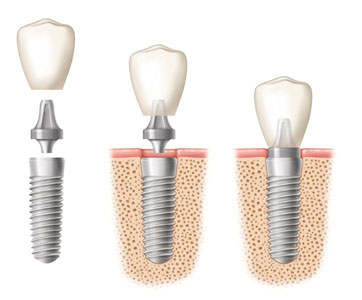 Dental Implants Pro Discover Dental