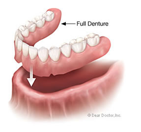 Full Denture Discover Dental