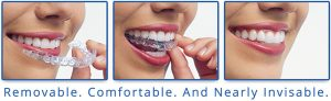 invisalign clear braces discover dental