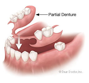Partial Denture Discover Dental