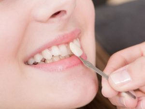 Veneers discover dental