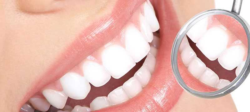 Zoom Whitening Discover Dental