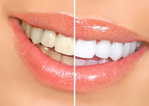sample teeth whitening discover dental