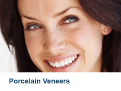 10-Porcelain-Veneers
