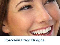 11-Porcelain-Fixed-Bridges