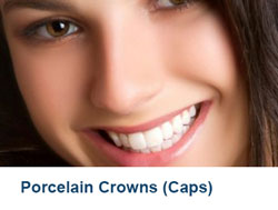 12-Porcelain-Crowns-(Caps)