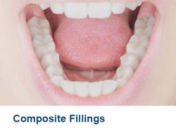 20-Composite-Fillings