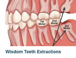 21-Wisdom-Teeth-Extractions