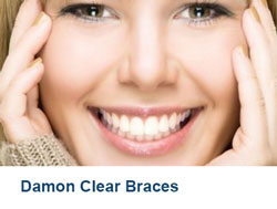5-Damon-Clear-Braces