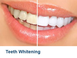 9-Teeth-Whitening