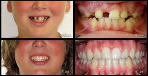 orthodontic patient before and after discover dental