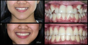 orthodontic patient 1 before and after discover dental