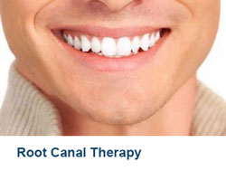 16-Root-Canal-Therapy